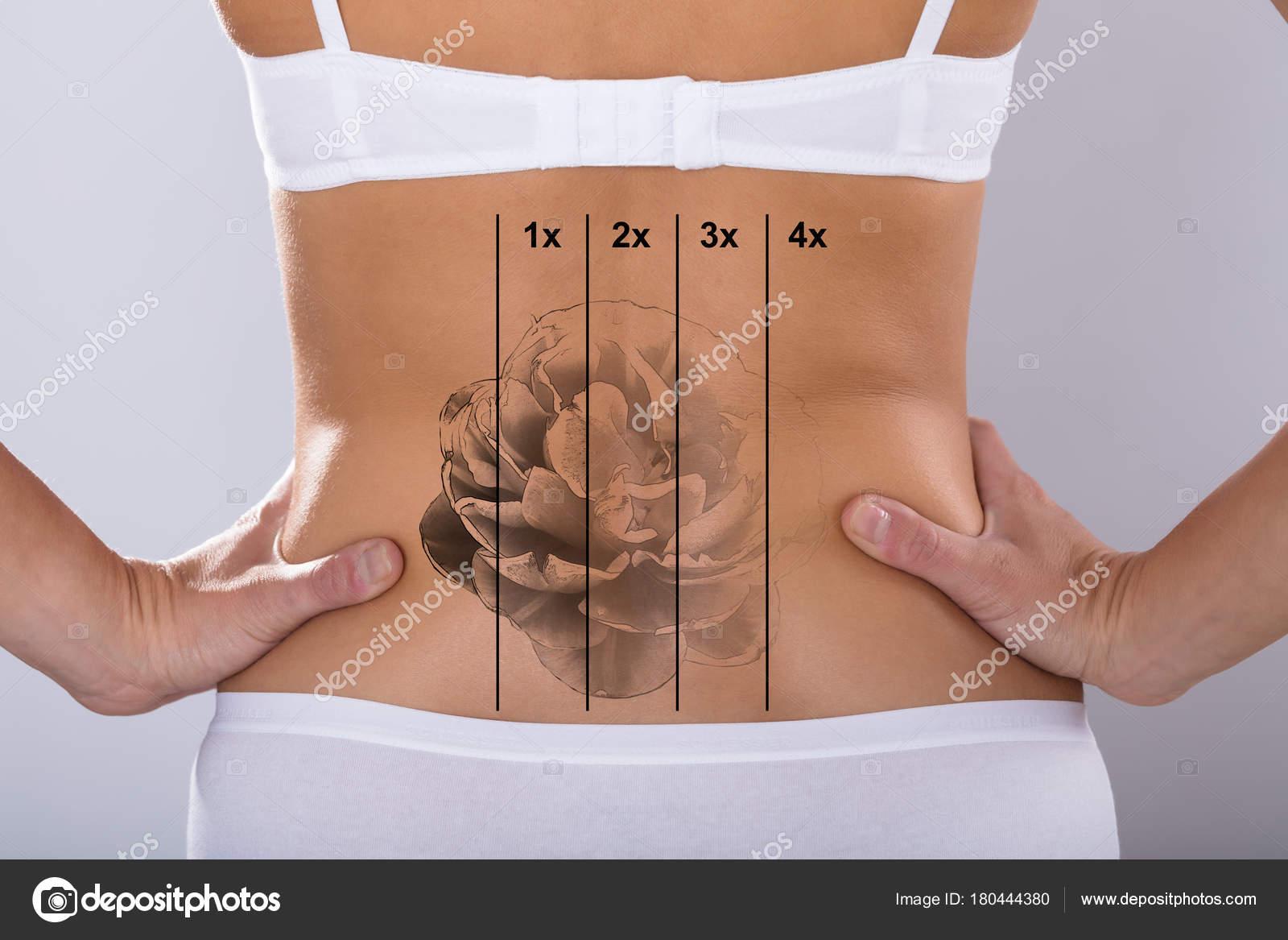 Vista Posterior Láser Eliminación Tatuajes Cadera Mujer Foto De