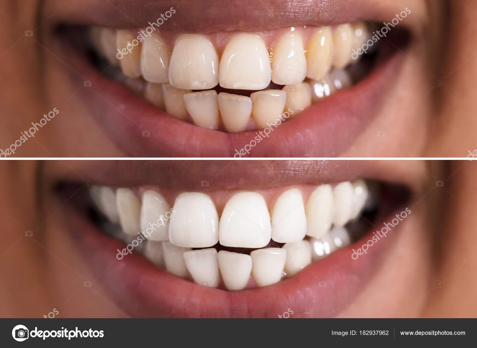 Close Sorridente Mulher Dentes Antes Depois Clareamento Stock