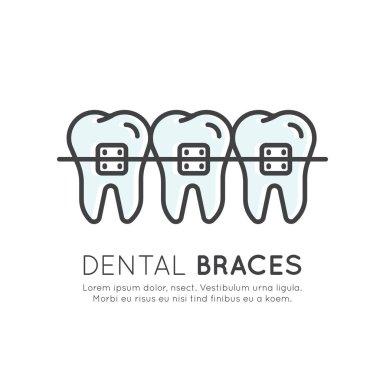 Dental Tooth Braces Installation Process