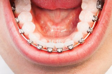 opened mouth with orthodontic braces