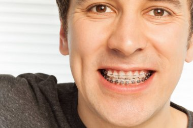 happy young man with dental braces