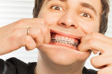 Broadly smiling man with dental braces