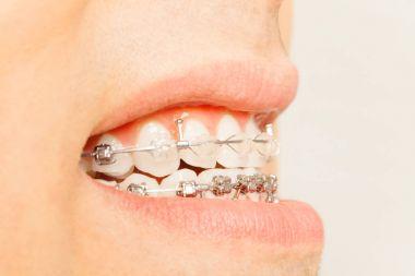 braces on teeth in profile view