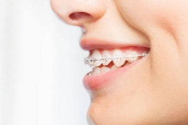 Side view picture of womans smile with dental braces on white