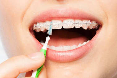 Close-up picture of woman using interdental brush for orthodontic braces