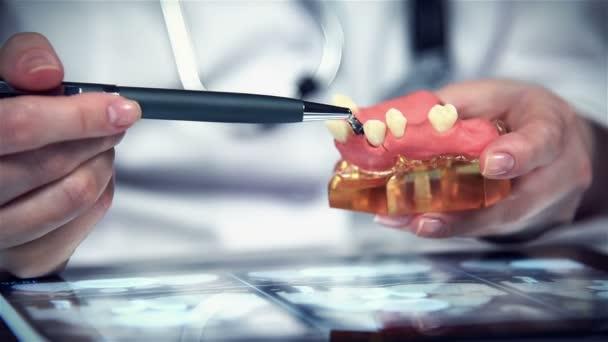 Zahnarzt zeigt Modell der Zahnersatz mit Implantat