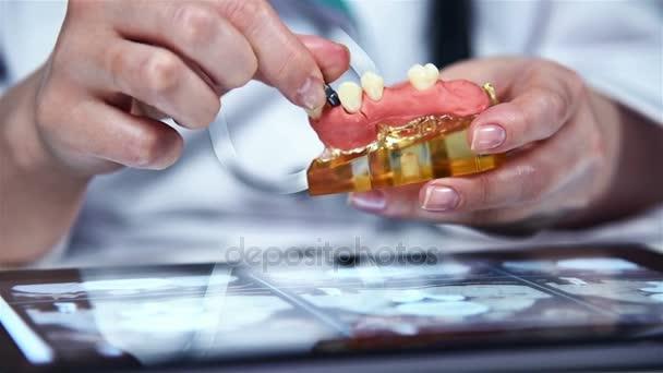 Zahnarzt zeigt Modell der Zahnersatz mit Implantat. Close Up