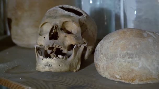 Human Skull in a Chemists Shop. This Human Skull With Traces of Medical Intervention
