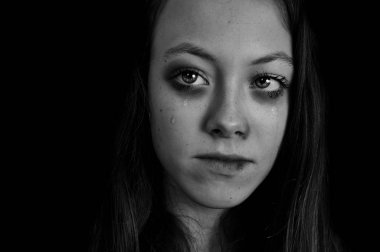Portrait of girl with bruised face