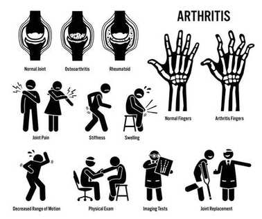 Arthritis, Joint Pain, and Joint Disease Icons. Pictograms depict arthritis signs, symptoms, diagnosis, and treatment. Icons include bones for osteoarthritis and rheumatoid arthritis.