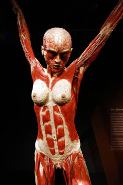 fully plastinated human body