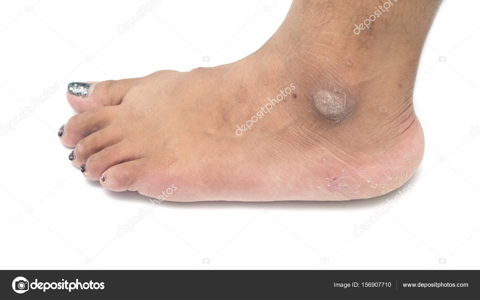 dry skin on ankle