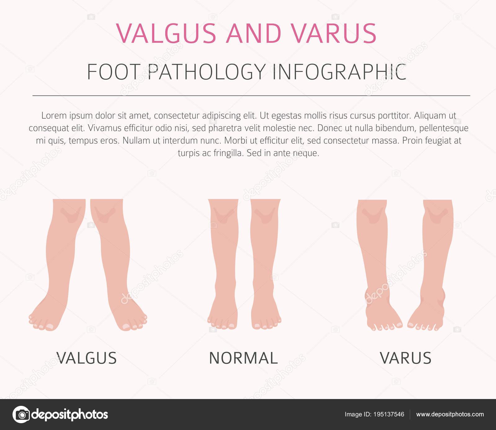 Deformación del pie como infografía de enfermedad médica. Valgus y ...