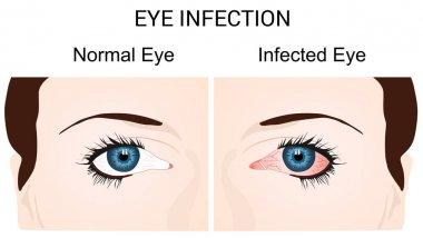 Eye Infection Conjunctivitis