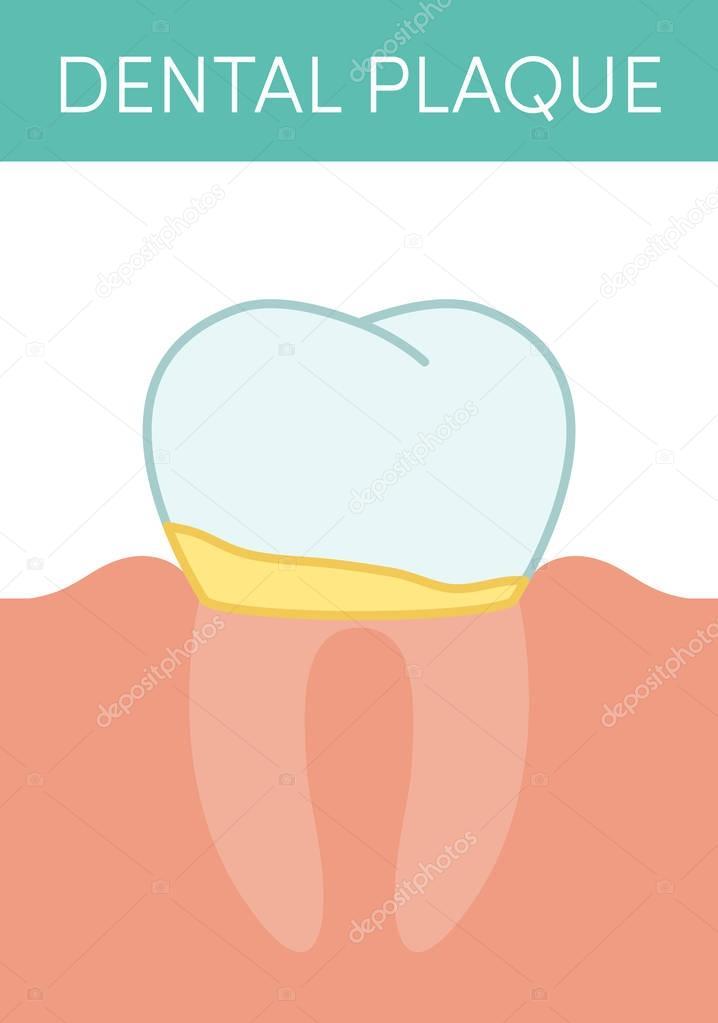 Dental plaque concept