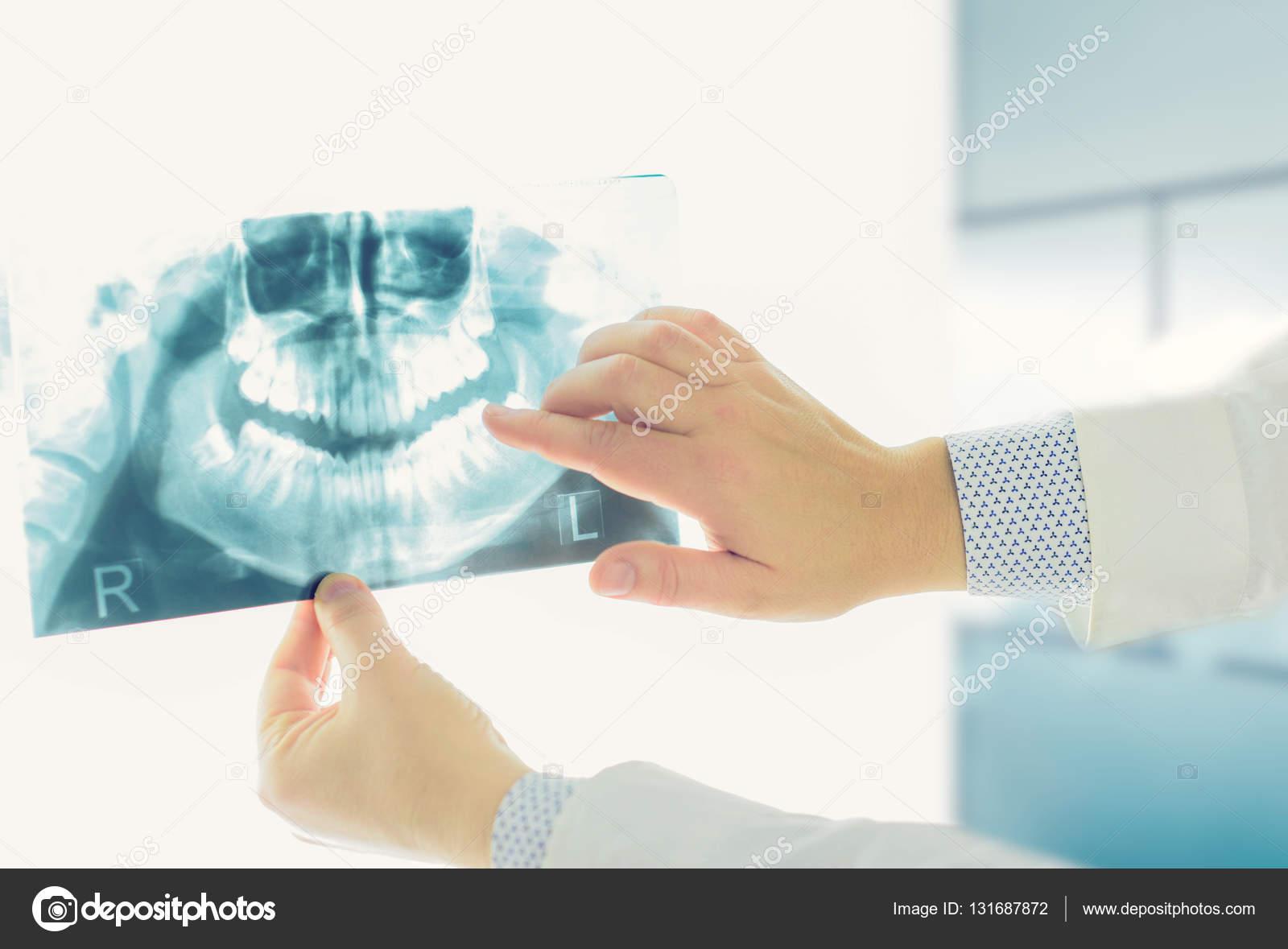 radiografía panorámica dental — Fotos de Stock © alekso_94 #131687872