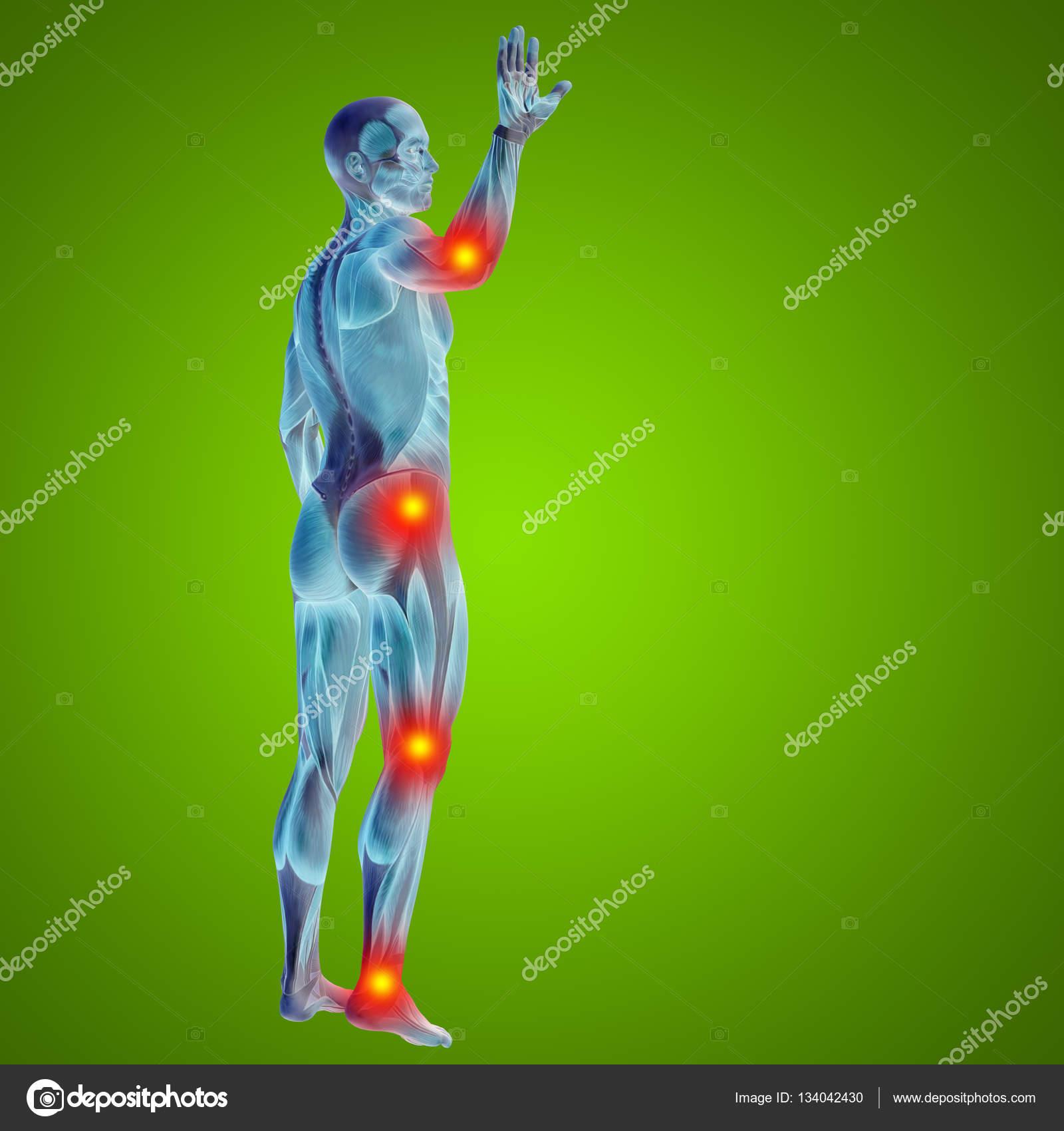 Menschen mit Gelenk-Muskeln oder Knochen Schmerzen — Stockfoto ...