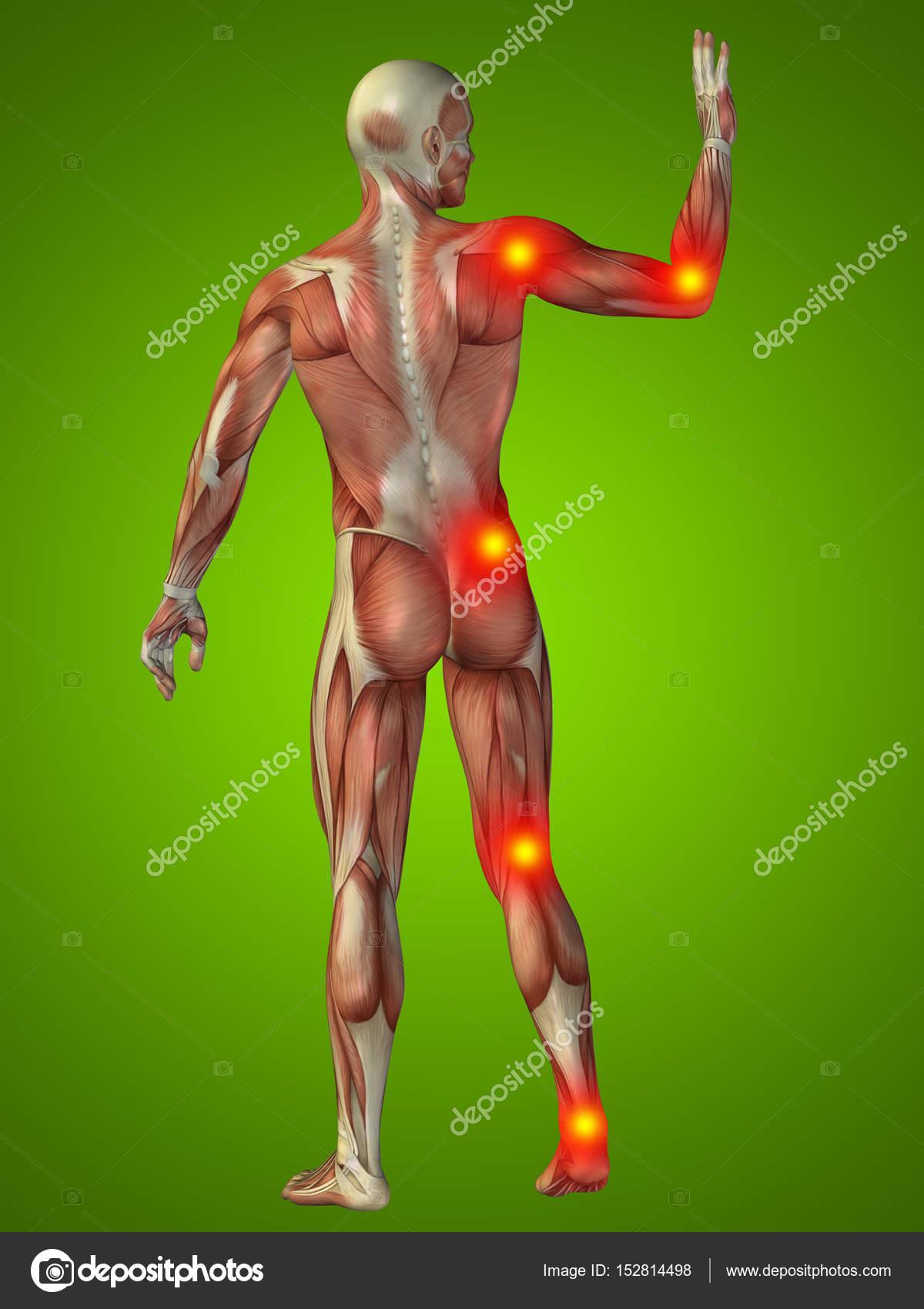 menschlichen Körper Anatomie mit Schmerzen Anzeichen — Stockfoto ...