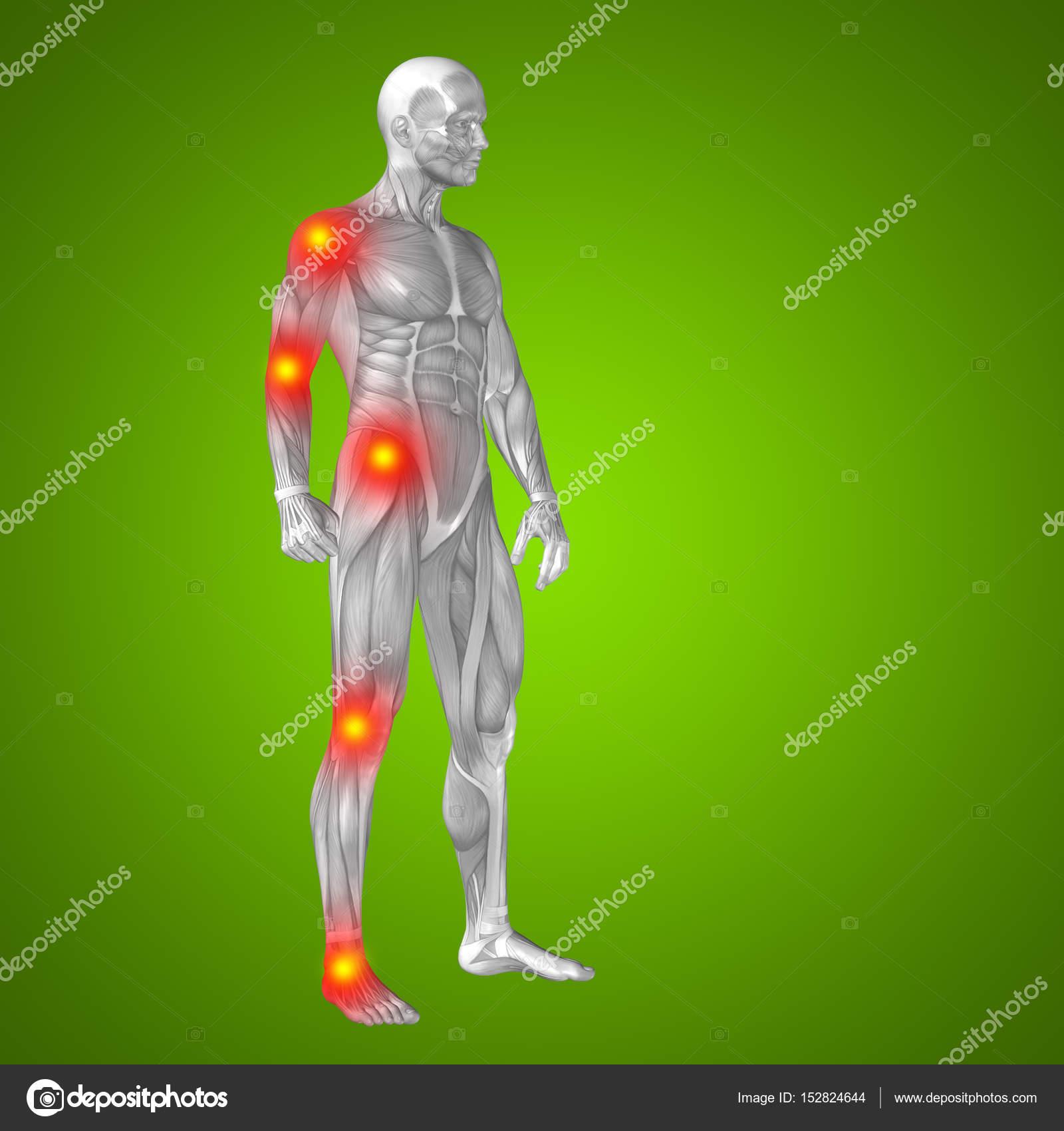 Anatomía Del Cuerpo Humano Con Signos De Dolor