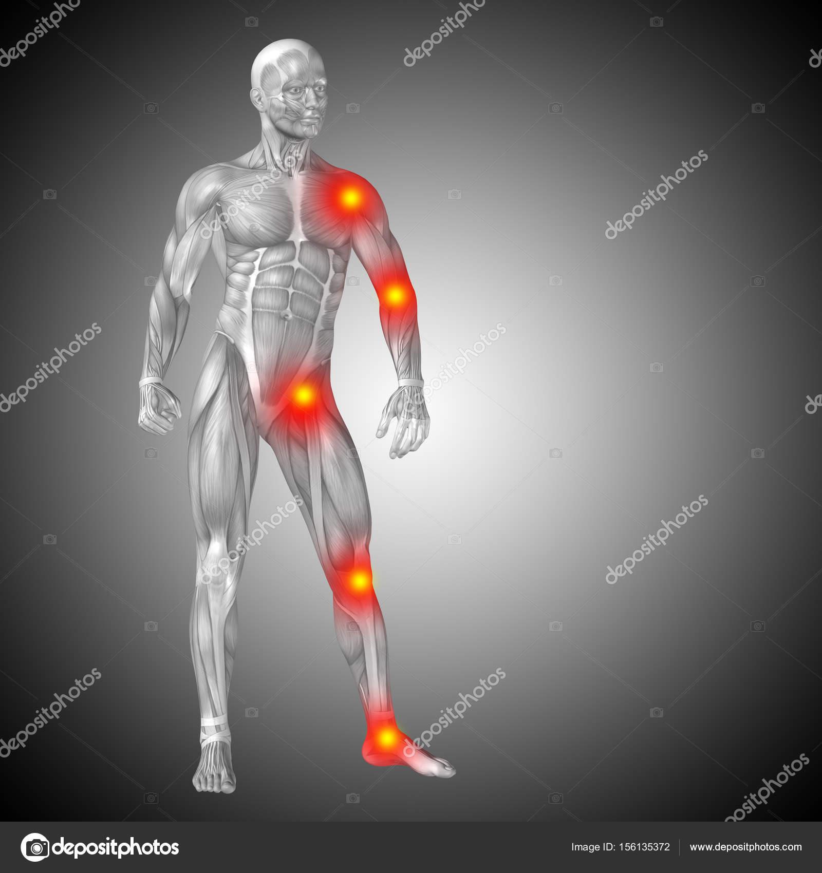 menschlichen Körper Anatomie mit Entzündung Zeichen — Stockfoto ...