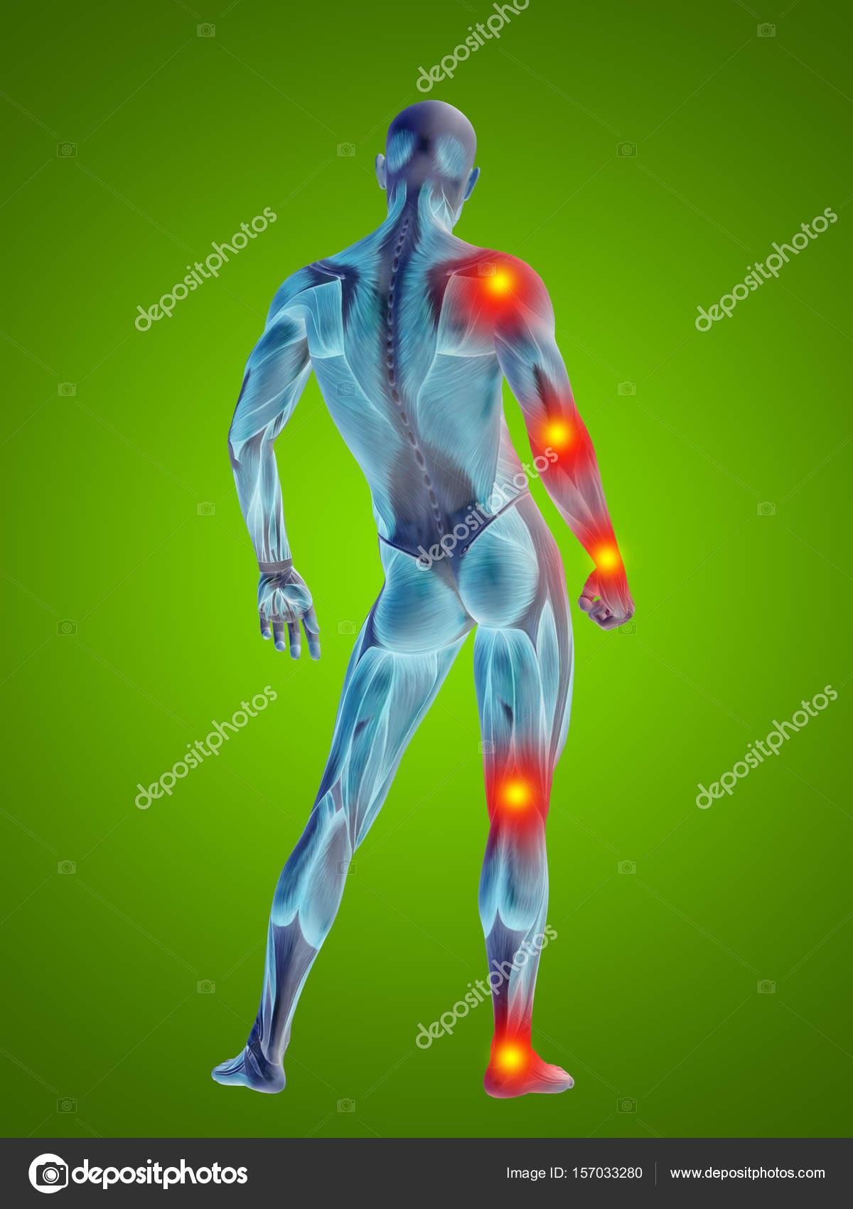 menschliche Anatomie Körper mit Gelenk Schmerzen — Stockfoto ...
