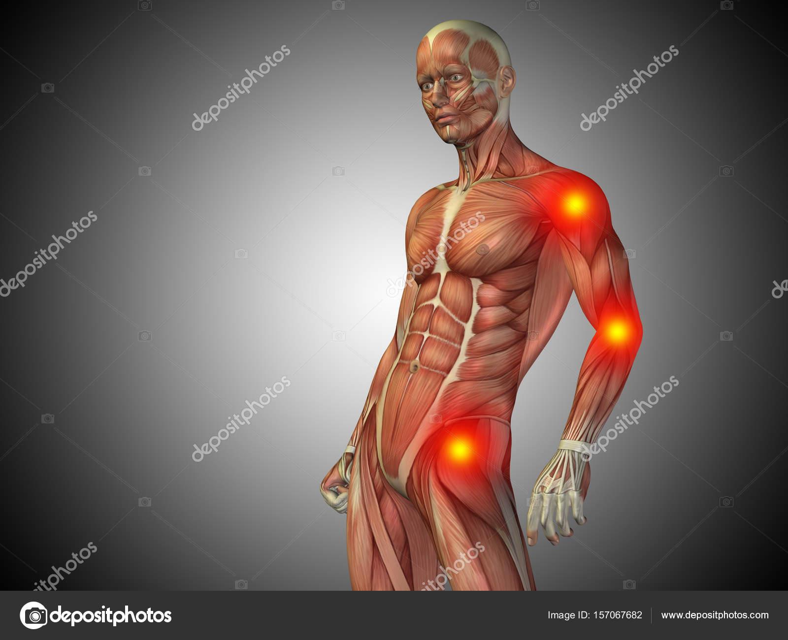 cuerpo de anatomía humana con dolor articular — Foto de stock ...