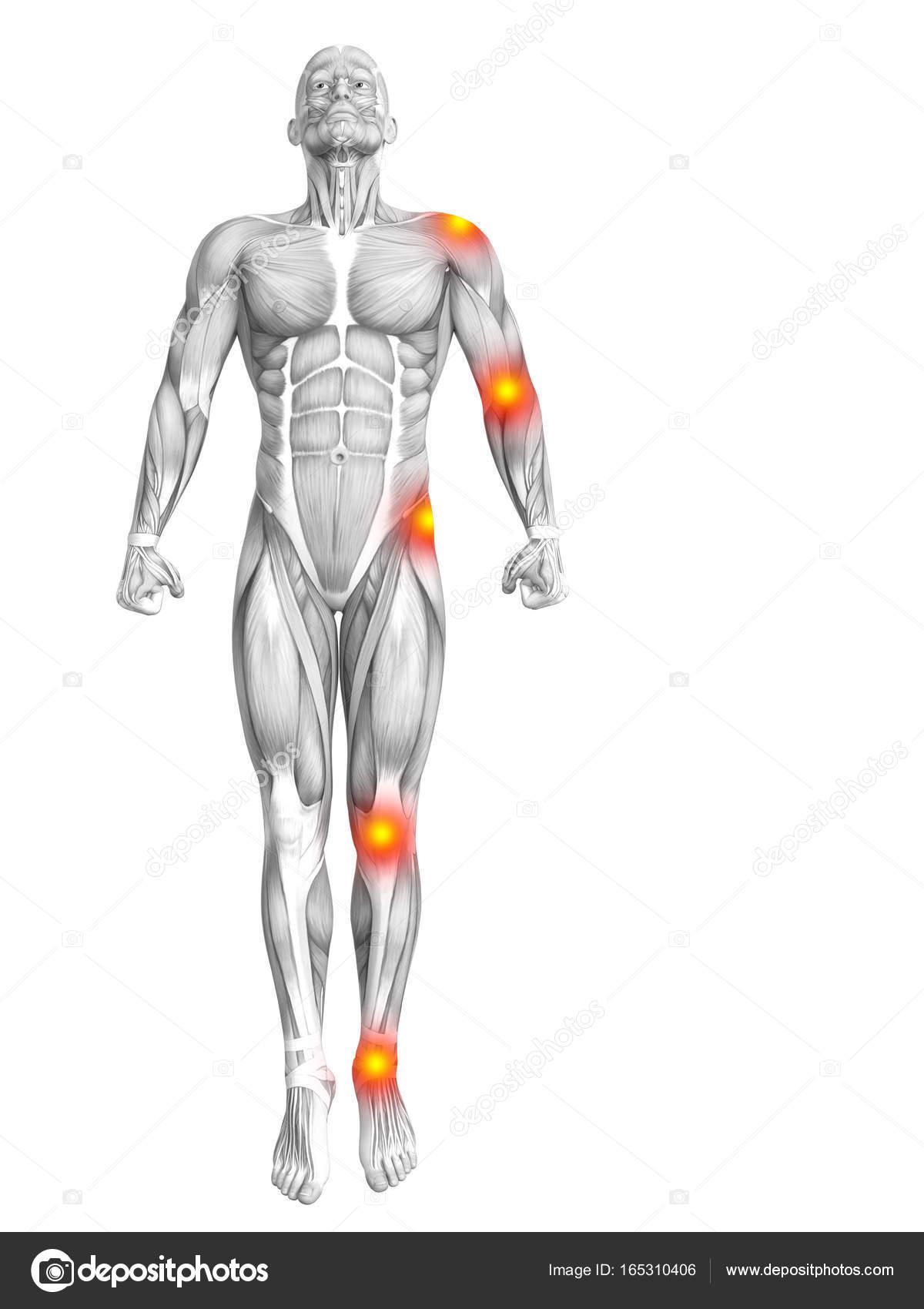 Conceptuele menselijke spier anatomie met rode en gele hotspot ...