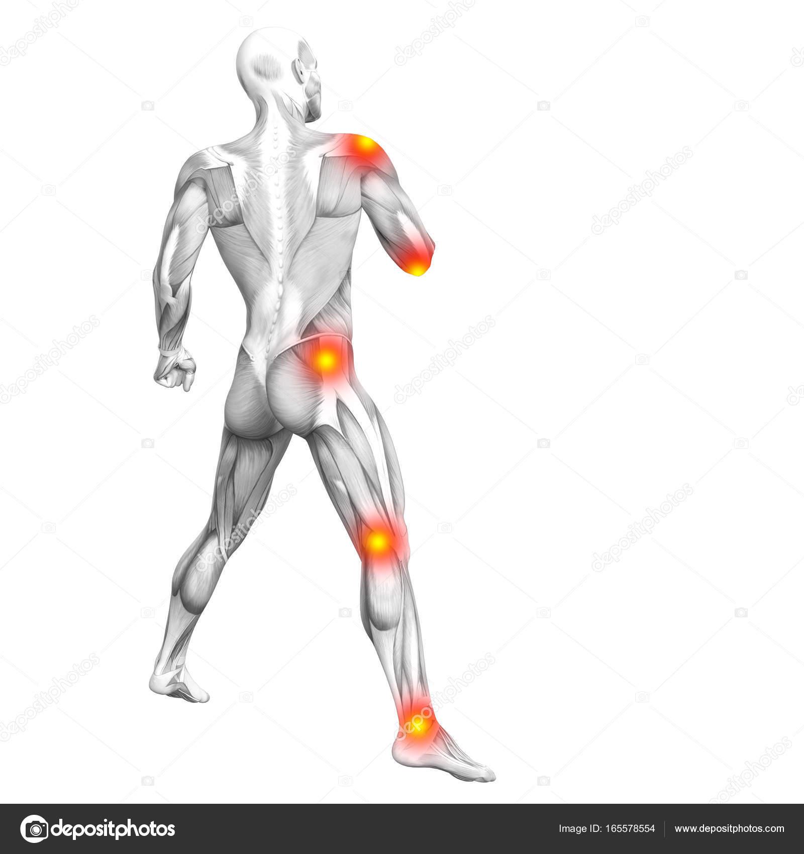 Болезнь спортсменов суставы выбитый сустав руке