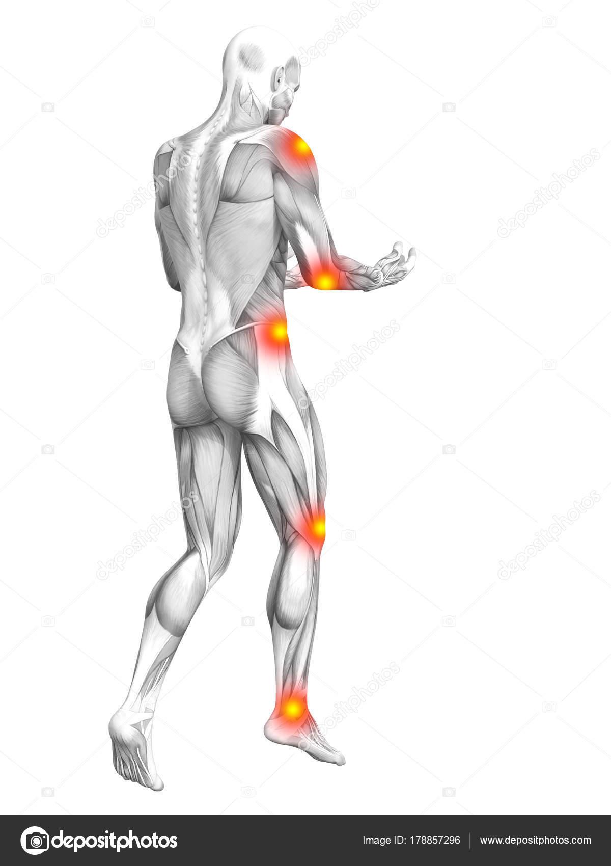 Conceptuele Menselijke Spier Anatomie Met Rode Gele Hotspot ...