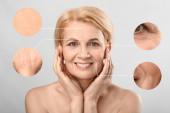 Gyönyörű érett nő bőrproblémákkal, világos háttérrel. Az öregedés folyamata