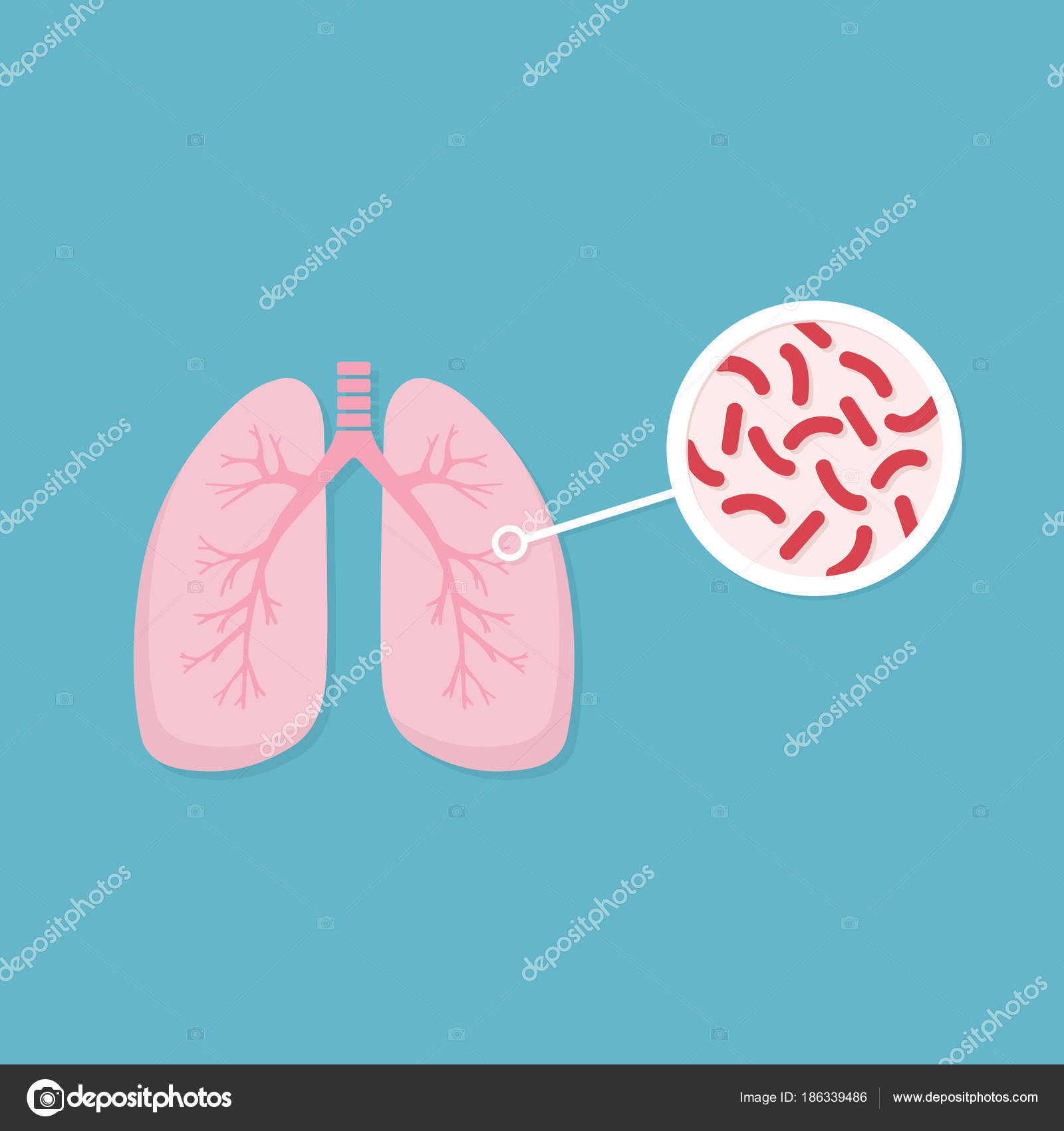 Lungs Of Infected Person Mycobacterium Tuberculosis Close Up