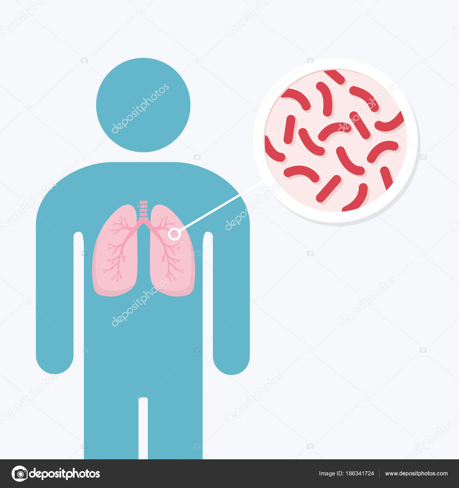 Human Lung Illness Anatomy Diagram Lungs Of Infected Person Tu