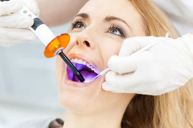 Patient whitening teeth at dentist