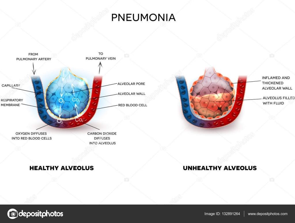 Neumonía y alvéolos sanos — Archivo Imágenes Vectoriales © megija ...