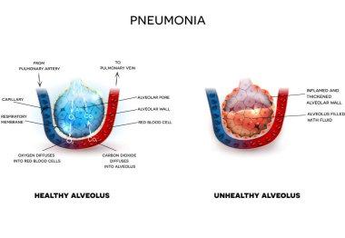 Pneumonia and healthy alveoli