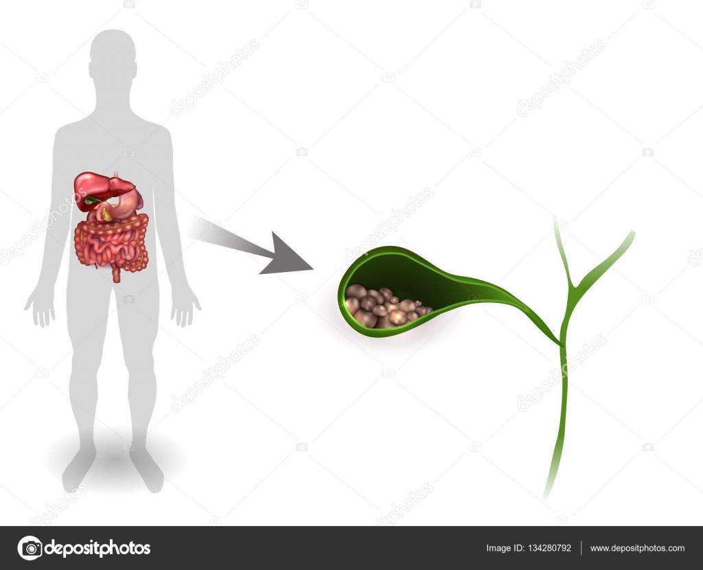 Cálculos biliares en la vesícula biliar, brillante de anatomía ...