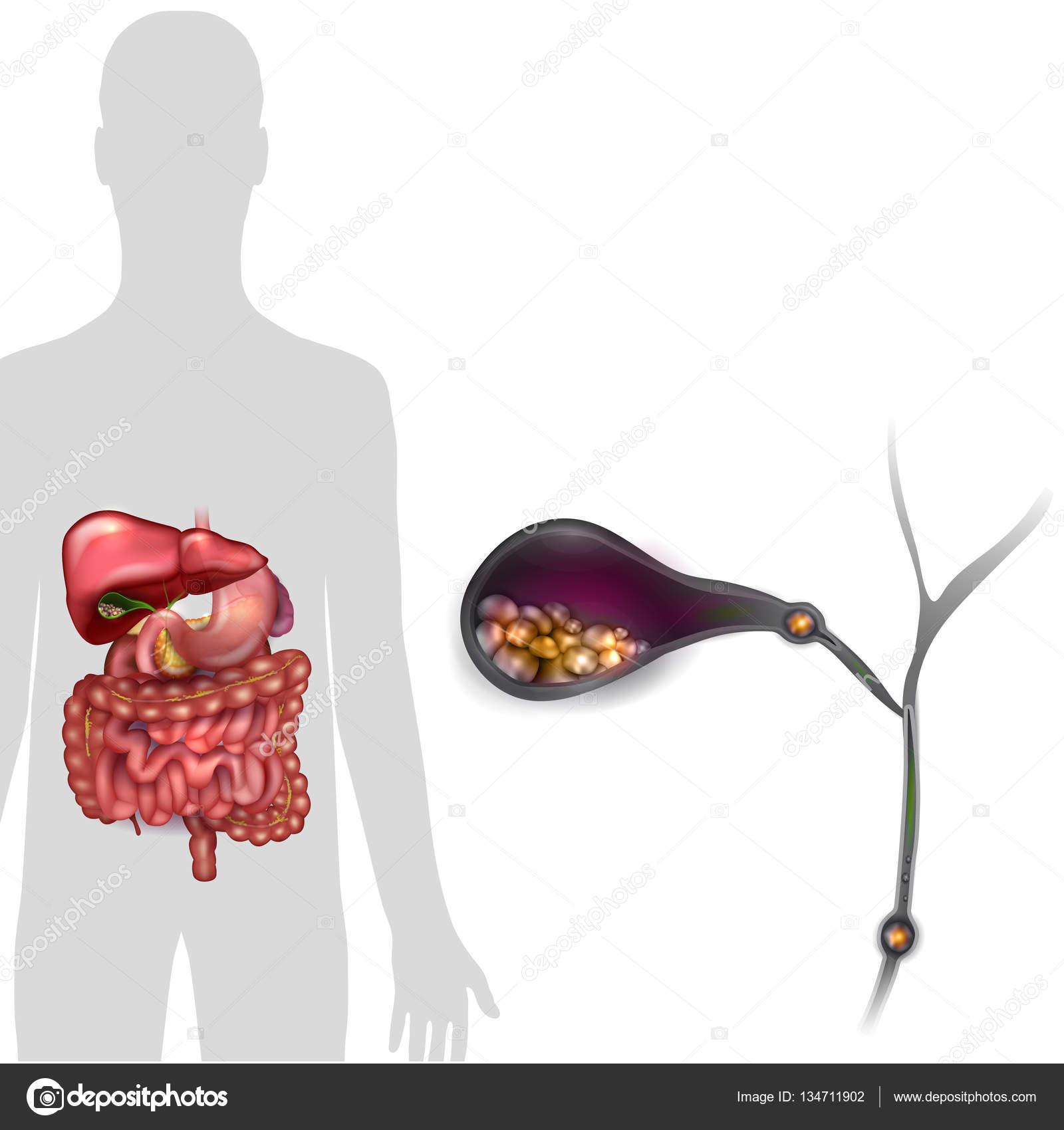 Cálculos biliares en la vesícula biliar — Archivo Imágenes ...