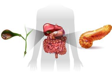 Gallstones and pancreatitis