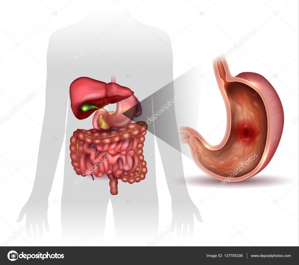 Úlcera de estómago, anatomía de órganos interanal colorido dibujo ...