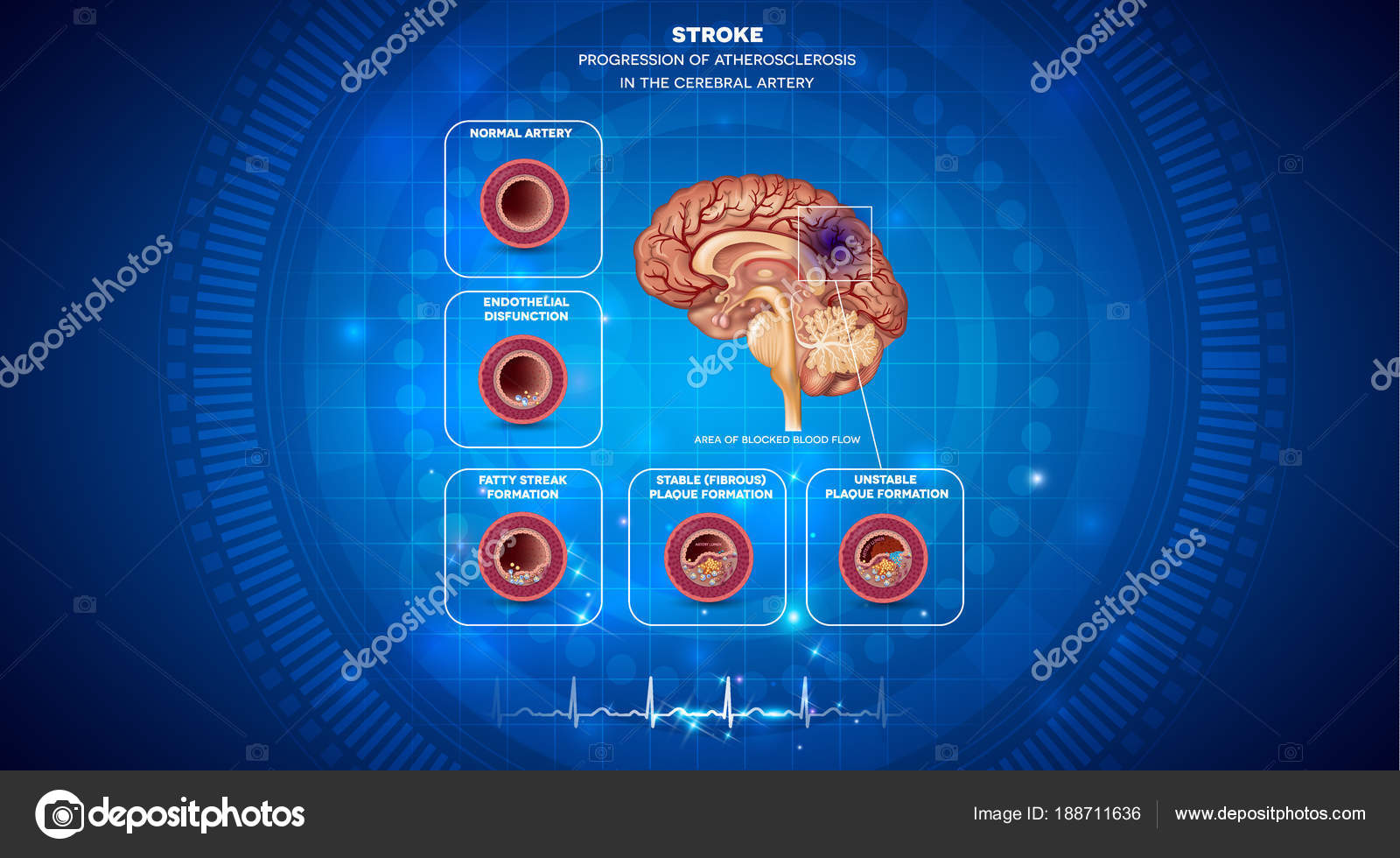 Stroke, blood clot formation in the brain — Stock Vector © megija ...