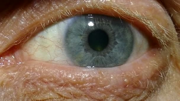 An one  eye of  old man with red capillaries. Macro