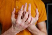 Blízké muže svědění a škrábání rukou. Psoriáza nebo ekzém na ruce. Atopická alergická kůže s červenými tečkami. Heath koncept