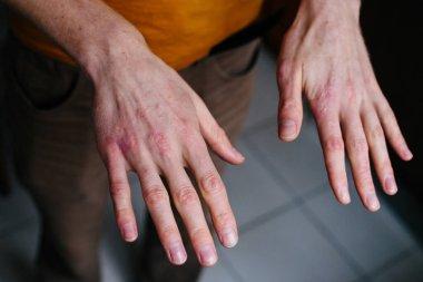 """Картина, постер, плакат, фотообои """"высокий угол зрения на руки, страдающие сухостью на коже и глубокими трещинами на ногах. Экзема или Фабрегас на руках"""", артикул 319321680"""