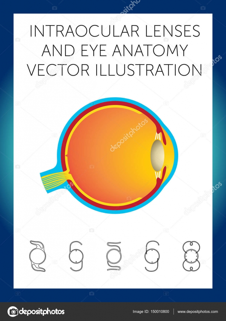 Intraocular Lenses And Eye Anatomy Vector Illustration Stock