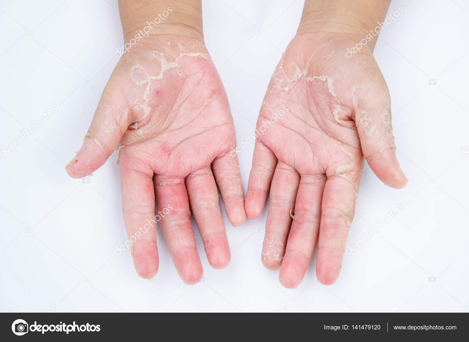gurchenko kéz artritisz)