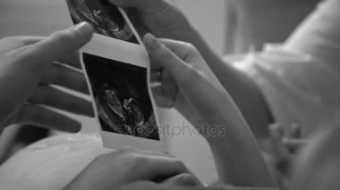 Pregnant woman having a sonogram scan in office at the hospital