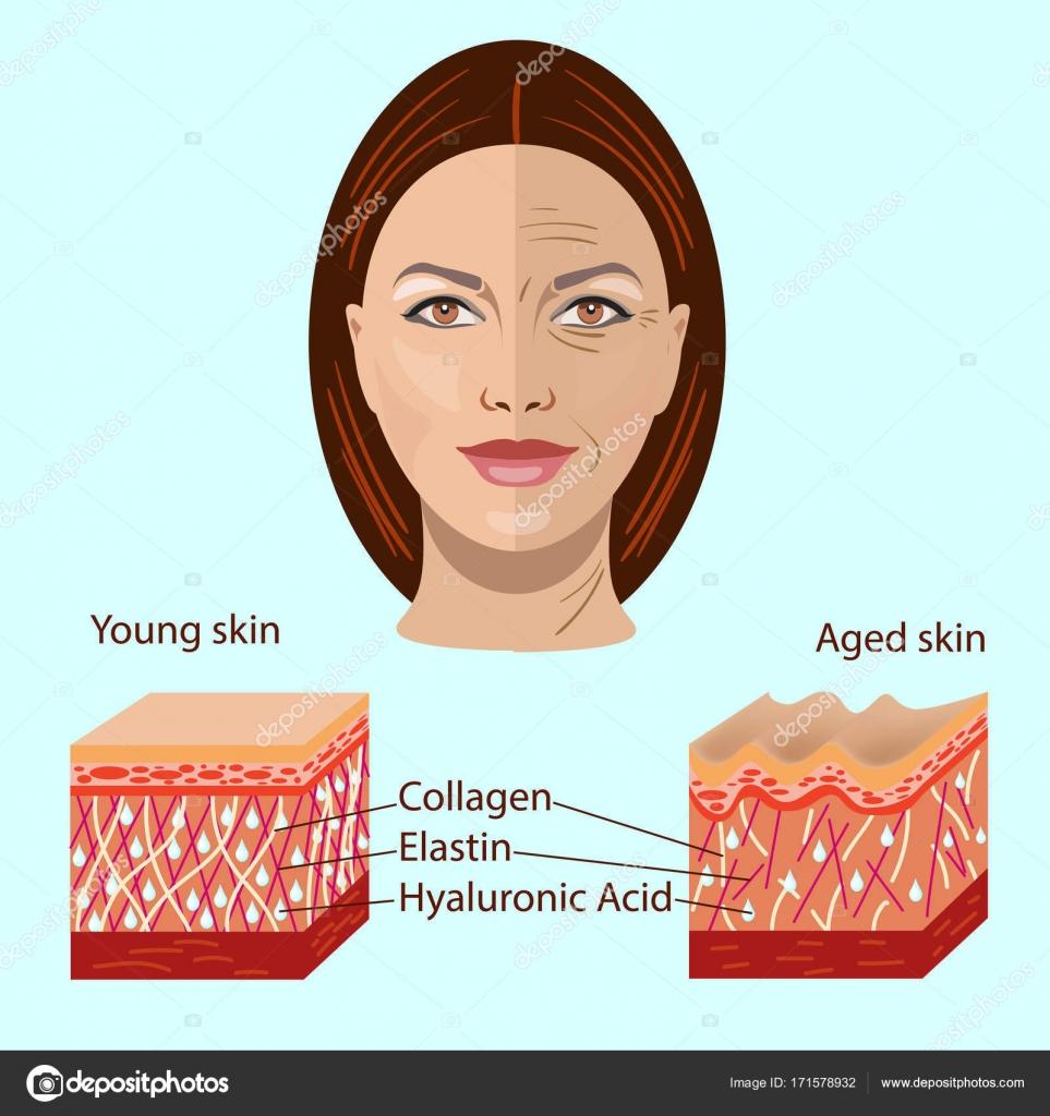 Vektor-Gesicht und zwei Arten von Haut - Jahre alt und jung für ...