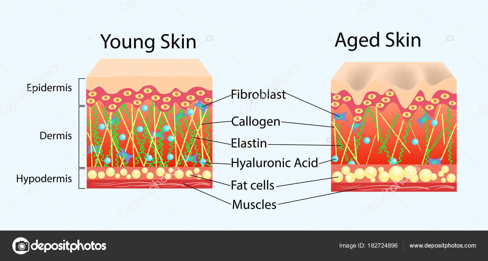 Diagrama del vector con los esquemas de dos tipos de piel, para la ...