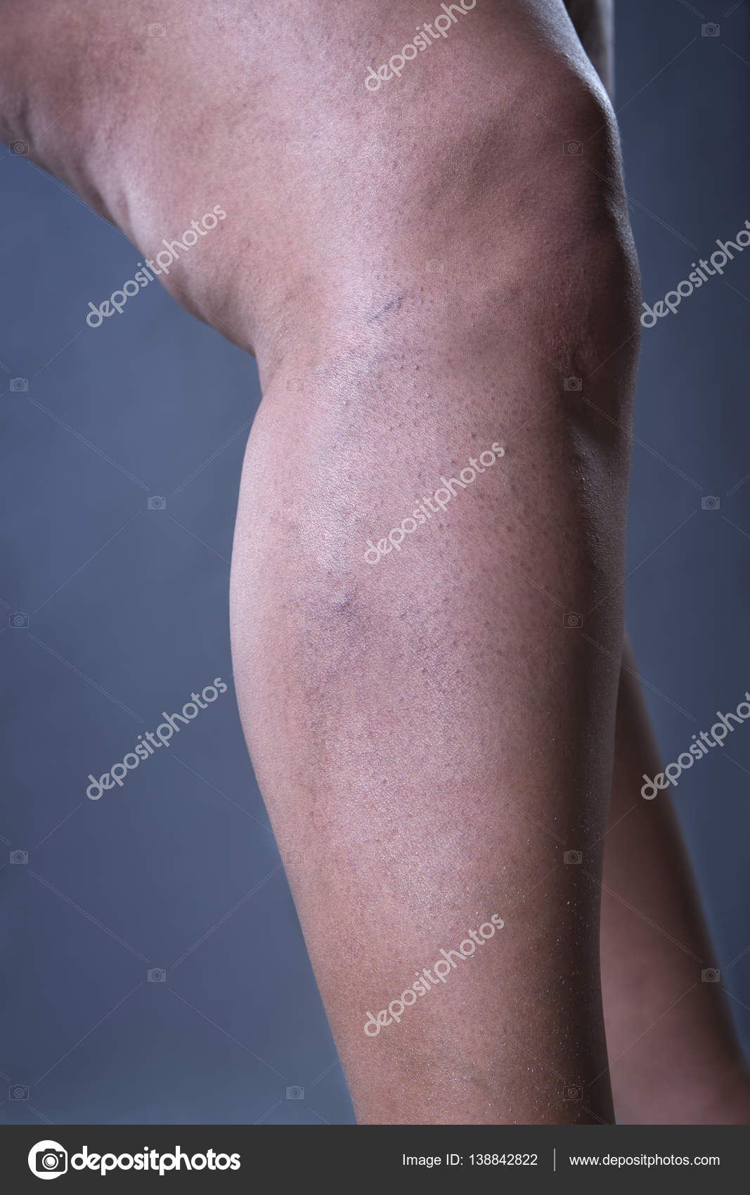 thick veins in legs