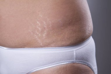 Woman's belly with stretch marks closeup